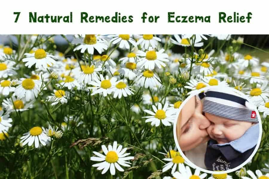 Eczema flare-ups can be incredibly irritating, and the dry winter air doesn't help! Check out 7 natural ways to effectively relieve the symptoms at home!